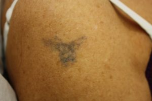 Tattoo Removal Before 4th Treatment