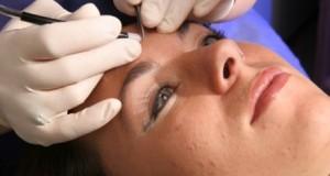 Electrolysis treatments