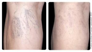 leg vein removal2